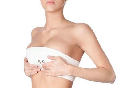 Prothèses / implants mammaires : un résultat naturel