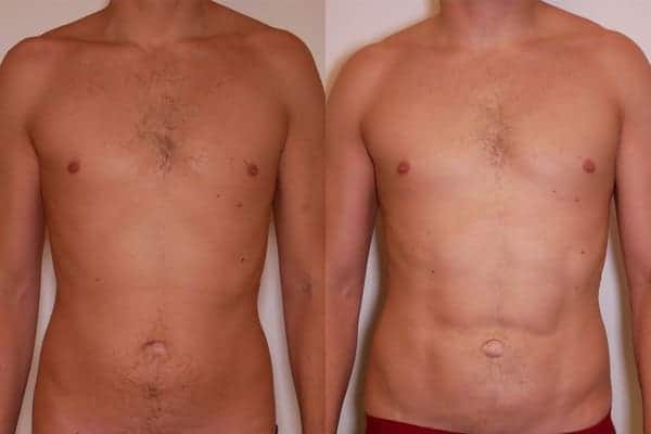 abdominal etching avant apres docteur frederic picard chirurgien esthetique paris levallois perret chirurgien specialiste abdominal etching 2