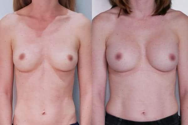 augmentation mammaire protheses mammaires avant apres docteur frederic picard chirurgien esthetique paris 16 levallois perret 1