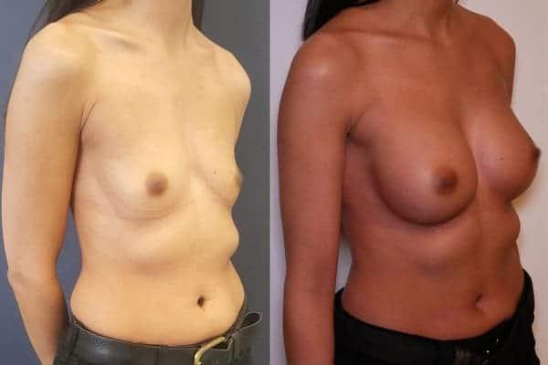 augmentation mammaire protheses mammaires avant apres docteur frederic picard chirurgien esthetique paris 16 levallois perret 12