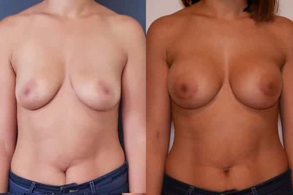 augmentation mammaire protheses mammaires avant apres docteur frederic picard chirurgien esthetique paris 16 levallois perret 13