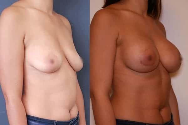 augmentation mammaire protheses mammaires avant apres docteur frederic picard chirurgien esthetique paris 16 levallois perret 14