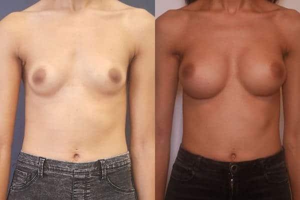 augmentation mammaire protheses mammaires avant apres docteur frederic picard chirurgien esthetique paris 16 levallois perret 15