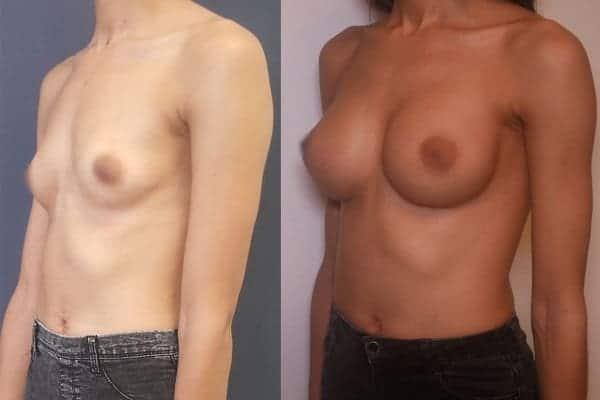 augmentation mammaire protheses mammaires avant apres docteur frederic picard chirurgien esthetique paris 16 levallois perret 16