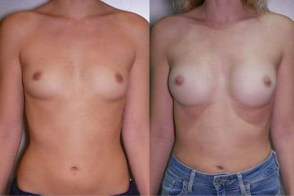 augmentation mammaire protheses mammaires avant apres docteur frederic picard chirurgien esthetique paris 16 levallois perret 17