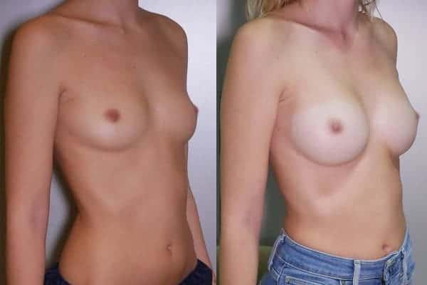 augmentation mammaire protheses mammaires avant apres docteur frederic picard chirurgien esthetique paris 16 levallois perret 18