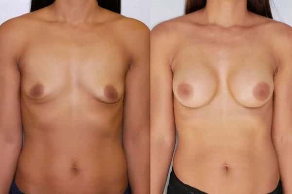 augmentation mammaire protheses mammaires avant apres docteur frederic picard chirurgien esthetique paris 16 levallois perret 19