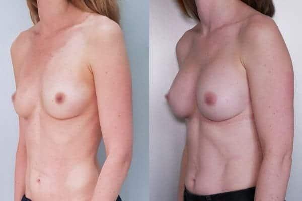 augmentation mammaire protheses mammaires avant apres docteur frederic picard chirurgien esthetique paris 16 levallois perret 2