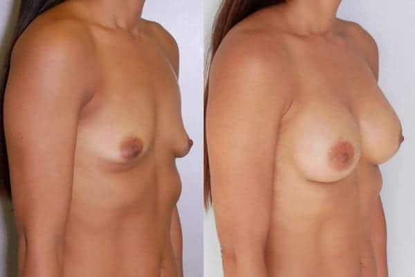 augmentation mammaire protheses mammaires avant apres docteur frederic picard chirurgien esthetique paris 16 levallois perret 20