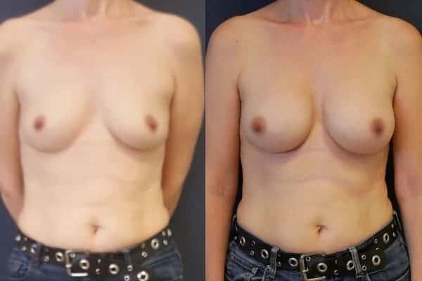 augmentation mammaire protheses mammaires avant apres docteur frederic picard chirurgien esthetique paris 16 levallois perret 21