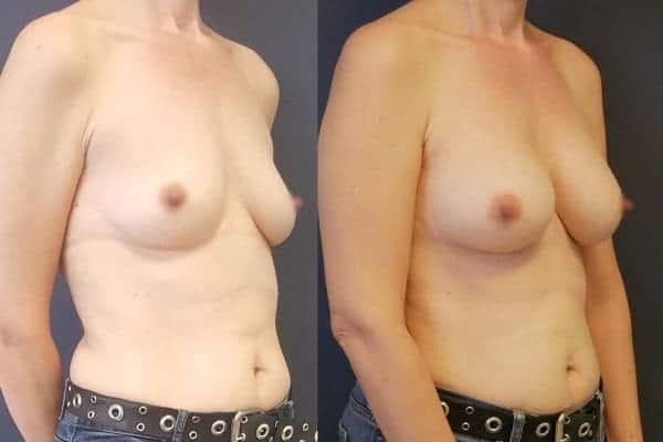 augmentation mammaire protheses mammaires avant apres docteur frederic picard chirurgien esthetique paris 16 levallois perret 22