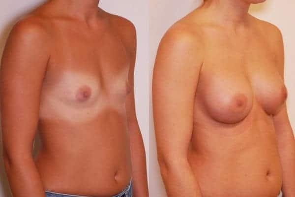 augmentation mammaire protheses mammaires avant apres docteur frederic picard chirurgien esthetique paris 16 levallois perret 24