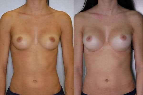 augmentation mammaire protheses mammaires avant apres docteur frederic picard chirurgien esthetique paris 16 levallois perret 25