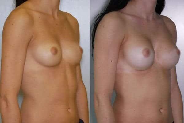 augmentation mammaire protheses mammaires avant apres docteur frederic picard chirurgien esthetique paris 16 levallois perret 26