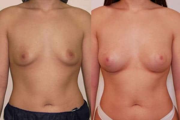 augmentation mammaire protheses mammaires avant apres docteur frederic picard chirurgien esthetique paris 16 levallois perret 27
