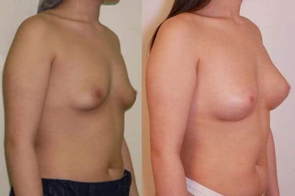 augmentation mammaire protheses mammaires avant apres docteur frederic picard chirurgien esthetique paris 16 levallois perret 28
