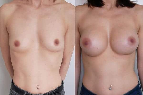 augmentation mammaire protheses mammaires avant apres docteur frederic picard chirurgien esthetique paris 16 levallois perret 3