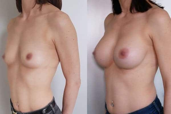 augmentation mammaire protheses mammaires avant apres docteur frederic picard chirurgien esthetique paris 16 levallois perret 4