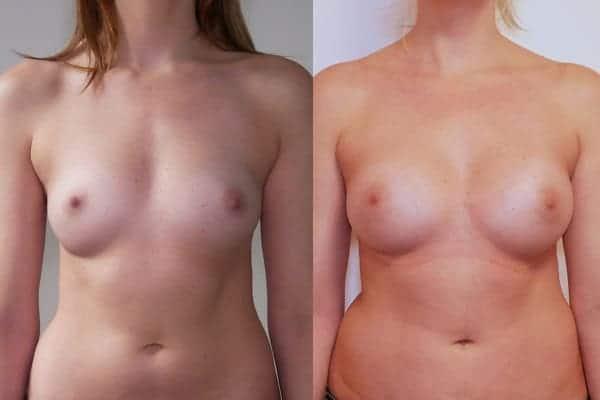 augmentation mammaire protheses mammaires avant apres docteur frederic picard chirurgien esthetique paris 16 levallois perret 5