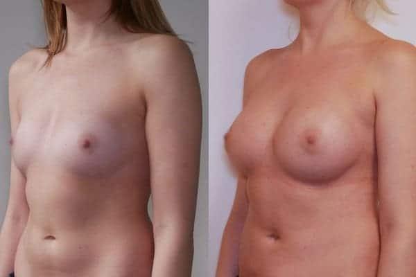 augmentation mammaire protheses mammaires avant apres docteur frederic picard chirurgien esthetique paris 16 levallois perret 6