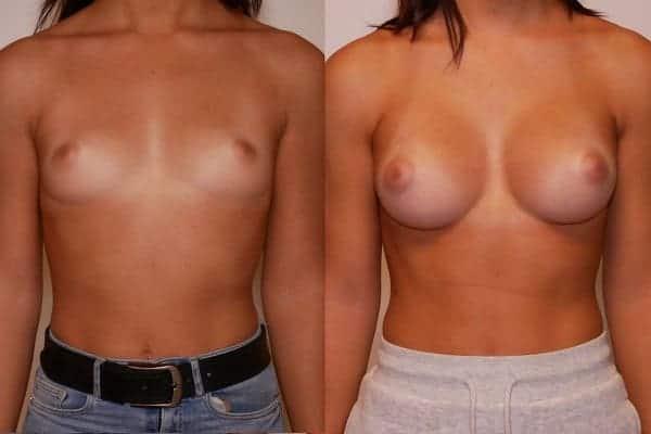 augmentation mammaire protheses mammaires avant apres docteur frederic picard chirurgien esthetique paris 16 levallois perret 7