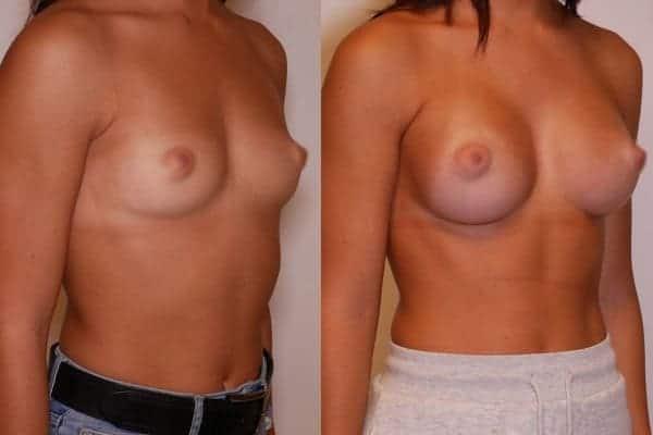 augmentation mammaire protheses mammaires avant apres docteur frederic picard chirurgien esthetique paris 16 levallois perret 8