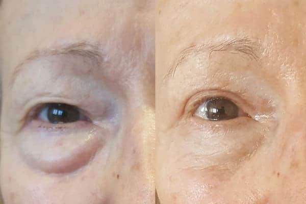 blepharoplastie avant apres chirurgien esthetique paris 16 levallois perret docteur frederic picard chirurgien esthetique visage paris 16