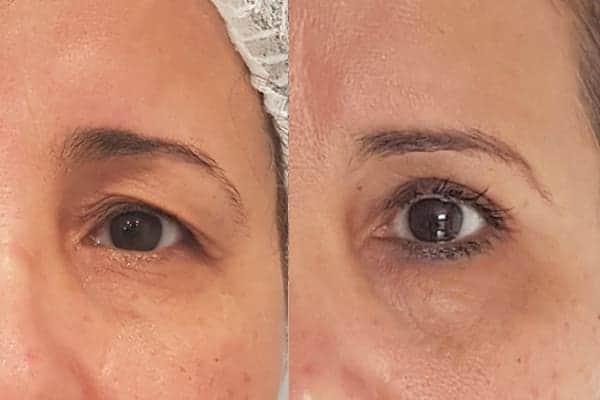 blepharoplastie avant apres chirurgien esthetique paris 16 levallois perret docteur frederic picard chirurgien esthetique visage paris 17