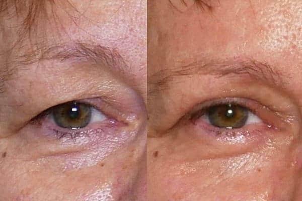 blepharoplastie avant apres chirurgien esthetique paris 16 levallois perret docteur frederic picard chirurgien esthetique visage paris 6