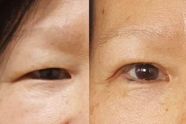 blepharoplastie avant apres chirurgien esthetique paris 16 levallois perret docteur frederic picard chirurgien esthetique visage paris 8