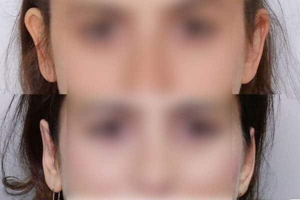 earfold avant apres chirurgien esthetique paris 16 levallois perret docteur frederic picard chirurgien esthetique visage paris 16