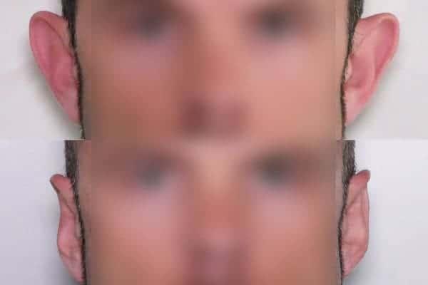 earfold avant apres chirurgien esthetique paris 16 levallois perret docteur frederic picard chirurgien esthetique visage paris 8