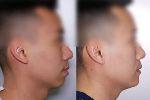 genioplastie avant apres chirurgien esthetique paris 16 levallois perret docteur frederic picard chirurgien esthetique visage paris 16
