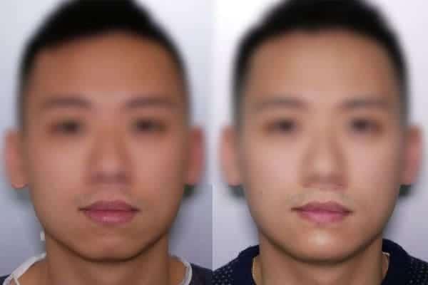 genioplastie avant apres chirurgien esthetique paris 16 levallois perret docteur frederic picard chirurgien esthetique visage paris