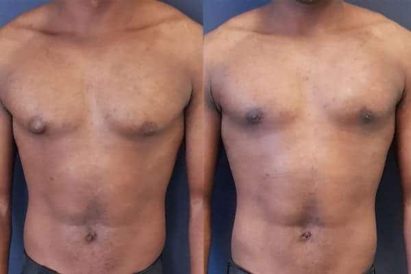 gynecomastie homme gynecomastie avant apres chirurgien esthetique paris 16 levallois perret docteur frederic picard