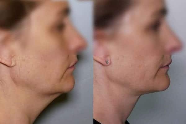 lipoaspiration double menton avant apres liposuccion menton avant apres docteur frederic picard chirurgien esthetique paris levallois perret chirurgien specialiste liposuccion double menton 2
