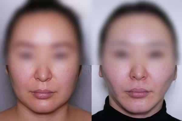 lipoaspiration joues avant apres liposuccion joues avant apres docteur frederic picard chirurgien esthetique paris levallois perret chirurgien specialiste liposuccion joues