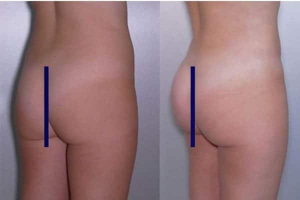 lipofilling de fesses avant apres lipofilling fessiers docteur frederic picard chirurgien esthetique paris levallois specialite fesses 11