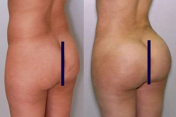 lipofilling de fesses avant apres lipofilling fessiers docteur frederic picard chirurgien esthetique paris levallois specialite fesses 12