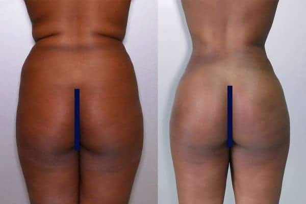 lipofilling de fesses avant apres lipofilling fessiers docteur frederic picard chirurgien esthetique paris levallois specialite fesses 15