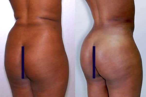 lipofilling de fesses avant apres lipofilling fessiers docteur frederic picard chirurgien esthetique paris levallois specialite fesses 16