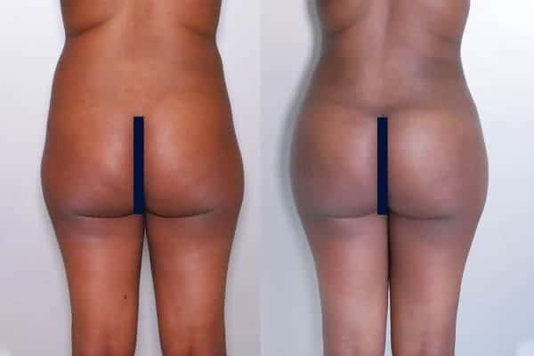 lipofilling de fesses avant apres lipofilling fessiers docteur frederic picard chirurgien esthetique paris levallois specialite fesses 17