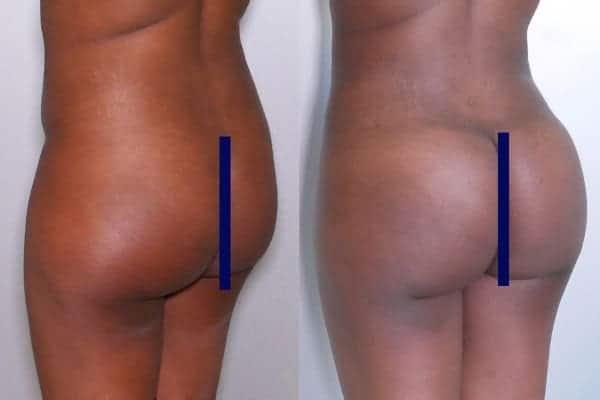 lipofilling de fesses avant apres lipofilling fessiers docteur frederic picard chirurgien esthetique paris levallois specialite fesses 18