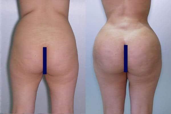 lipofilling de fesses avant apres lipofilling fessiers docteur frederic picard chirurgien esthetique paris levallois specialite fesses 19