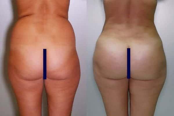 lipofilling de fesses avant apres lipofilling fessiers docteur frederic picard chirurgien esthetique paris levallois specialite fesses 2