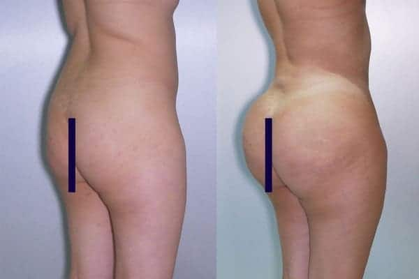 lipofilling de fesses avant apres lipofilling fessiers docteur frederic picard chirurgien esthetique paris levallois specialite fesses 20