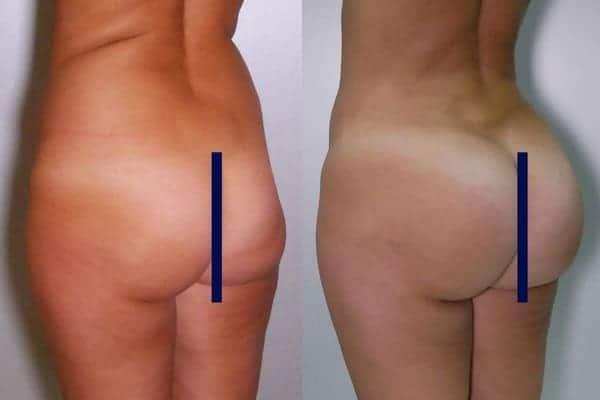 lipofilling de fesses avant apres lipofilling fessiers docteur frederic picard chirurgien esthetique paris levallois specialite fesses 3