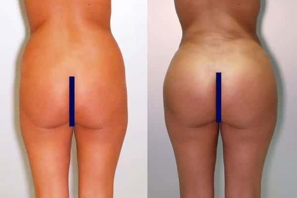 lipofilling de fesses avant apres lipofilling fessiers docteur frederic picard chirurgien esthetique paris levallois specialite fesses 4