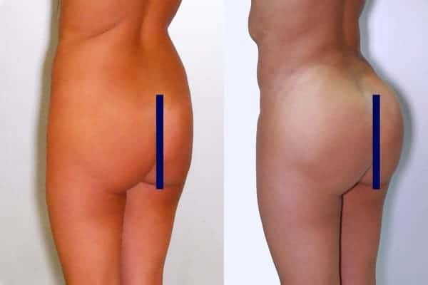 lipofilling de fesses avant apres lipofilling fessiers docteur frederic picard chirurgien esthetique paris levallois specialite fesses 5