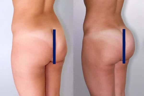 lipofilling de fesses avant apres lipofilling fessiers docteur frederic picard chirurgien esthetique paris levallois specialite fesses 8